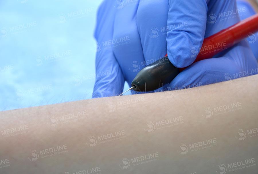 удаление волос методом шугаринга